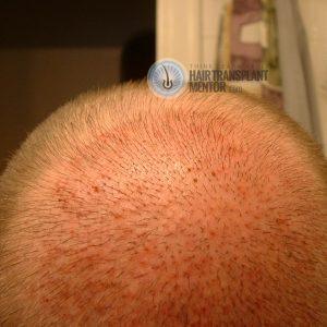 hair-transplant-repair-surgery-2-day-5-crown-photo-sept