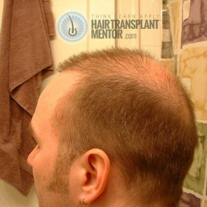 hair-transplant-repair-surgery-2-month-2-left-rear-donor-zone-sept