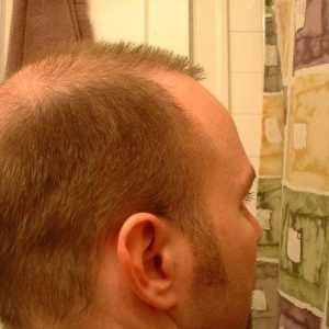 hair-transplant-repair-surgery-2-month-2-right-rear-donor-zone-sept