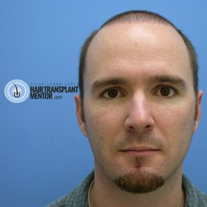hair-transplant-repair-surgery-3-day-7-frontal-face-sept