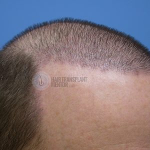 hair-transplant-repair-surgery-3-day-7-right-hairline-angle-sept