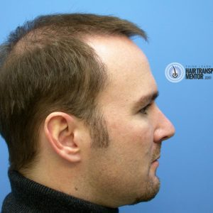hair-transplant-repair-surgery-3-month-3-.right-profile-photo-sept