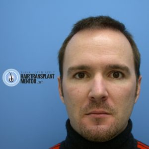 hair-transplant-repair-surgery-3-month-3-frontal-face-photo-sept