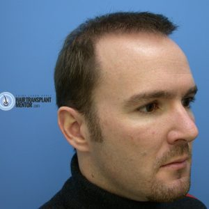 hair-transplant-repair-surgery-3-month-3-right-angle-hairline-shot-sept
