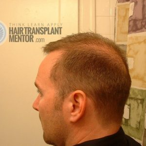 hair-transplant-repair-surgery-4.5-month-left-donor-zone-sept