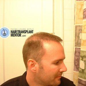 hair-transplant-repair-surgery-4.5-month-left-hairline-sept
