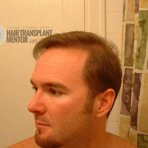 hair-transplant-repair-surgery-7-month-left-angle-hairline-dry