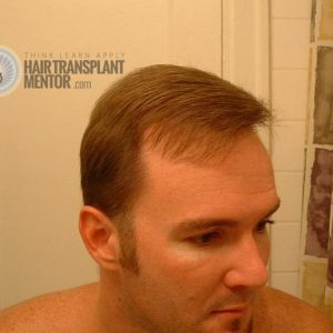hair-transplant-repair-surgery-7-month-right-hairline-angle-dry