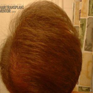 hair-transplant-repair-surgery-7-month-top-dry-combed-sideways