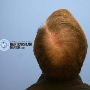 hair-transplant-repair-surgery-9-month-crown-result