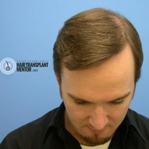 hair-transplant-repair-surgery-9-month-front-final-result