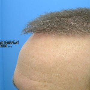 hair-transplant-repair-surgery-month-2-left-angle-hairline-sept