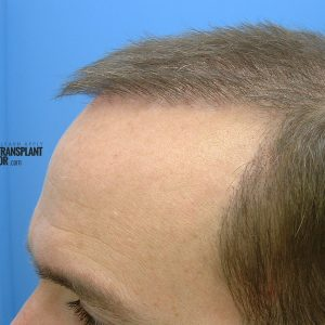 hair-transplant-repair-surgery-month-2-left-hairline-closeup-sept