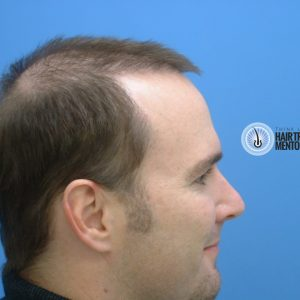 hair-transplant-repair-surgery-month-2-right-profile-sept