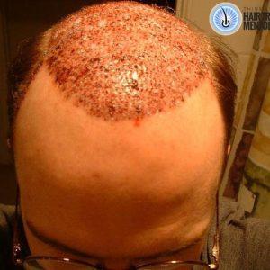 hair-transplant-result-day1c-sept
