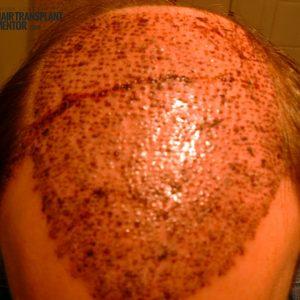 hair-transplant-result-overhead-day2-sept