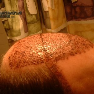 hair-transplant-result-right-overhead-day2-sept